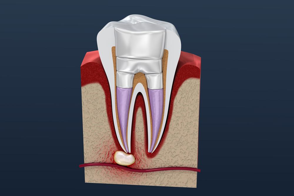 kilbirnie dentist - Root canal - Root Canal Treatment