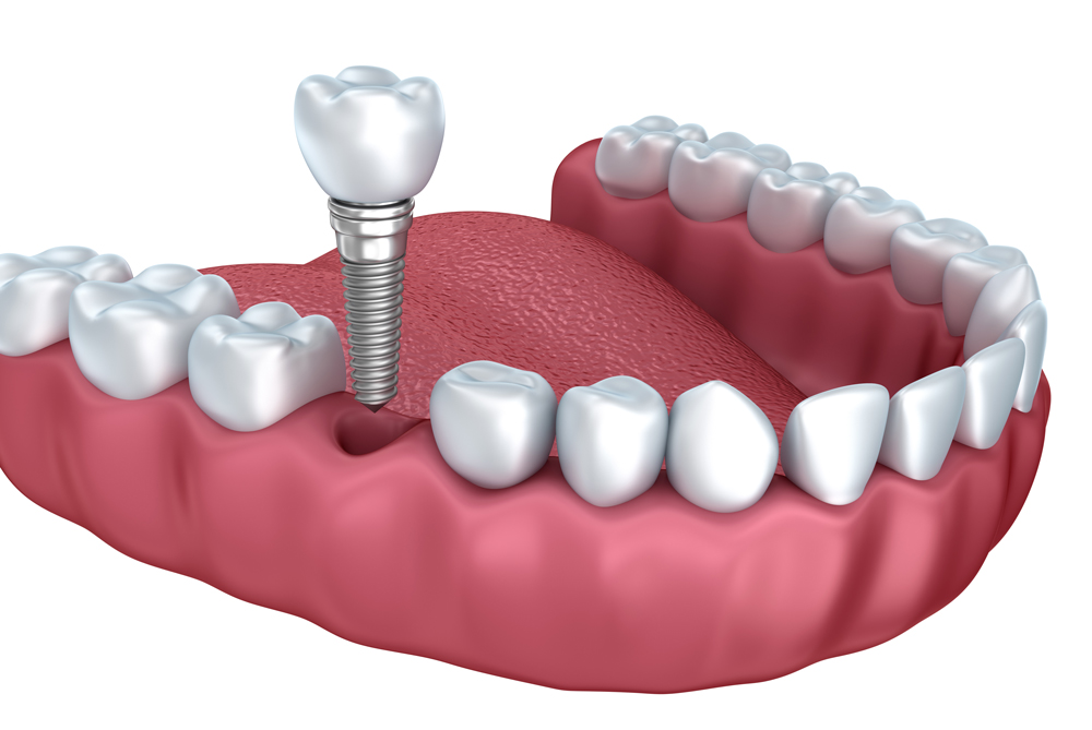 wellington dentist - dental implants new - Dental Implants