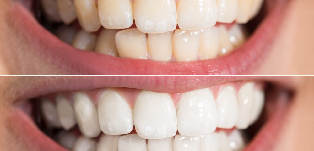 dental implants - teeth whitening 1000x480 - Top 5 Ways to Improve Your Smile