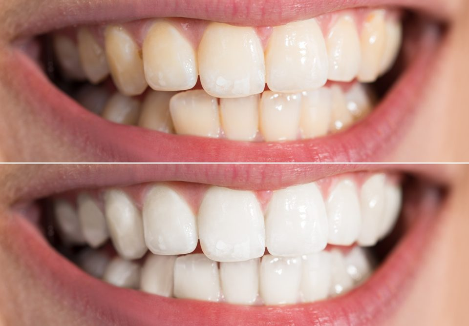 dental implants - teeth whitening 960x668 - Top 5 Ways to Improve Your Smile