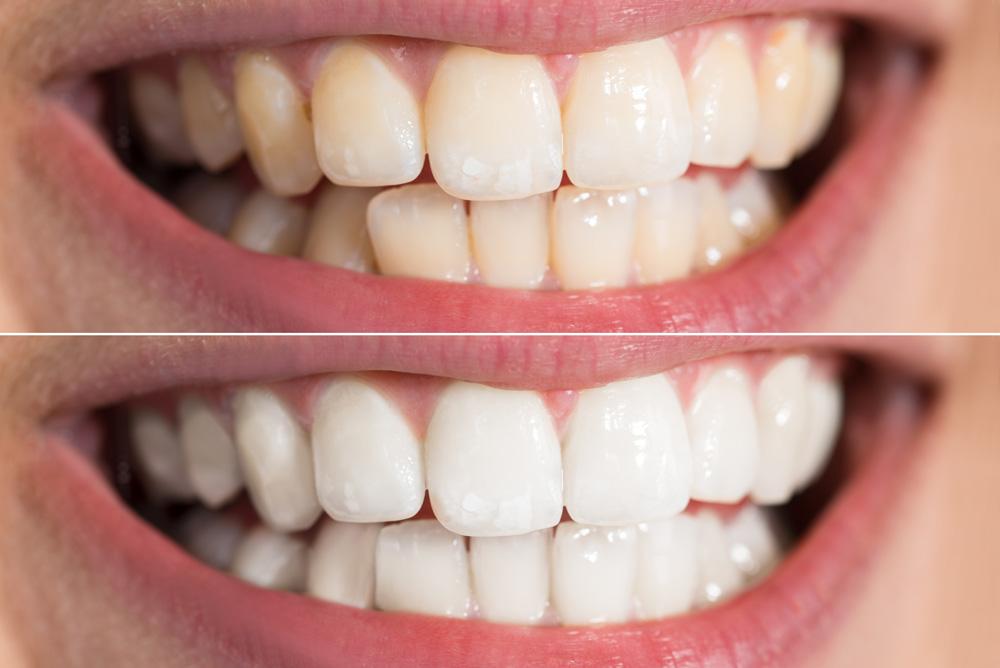 teeth whitening - teeth whitening - Cosmetic Dentistry