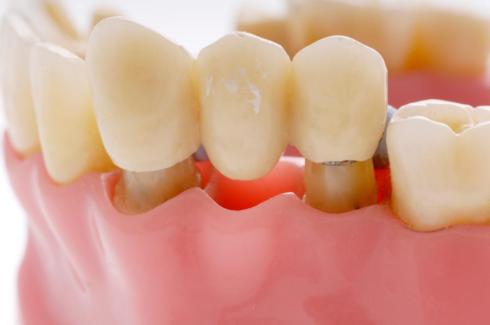 dental bridges - dental bridges - Dental Bridges
