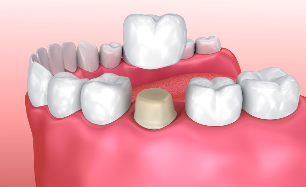 dental crown - dental crowns - Dental Crowns