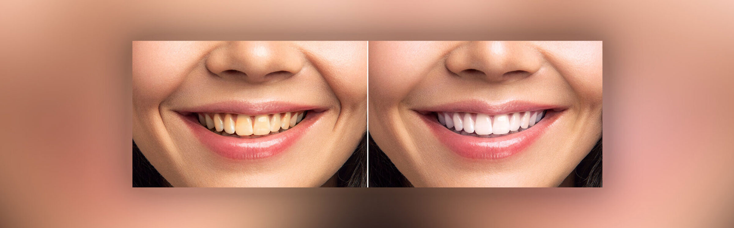 teeth-whitening-nz